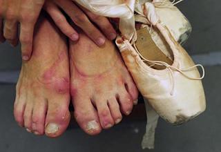 ballerina-feet
